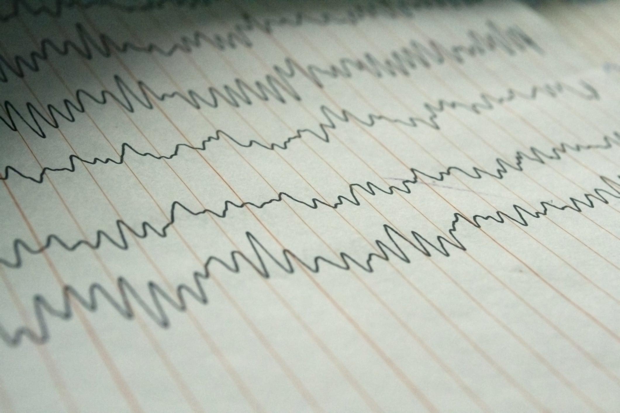 Electroencephalogram EEG